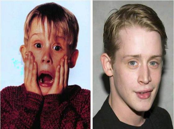 Crianças famosas Antes e Depois 7