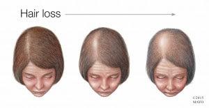 Perdida-de-cabello