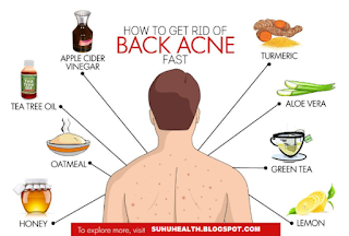 How to Get Rid of Back Acne Once And For All