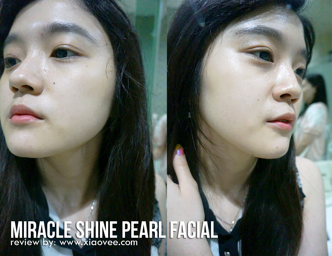 Miracle Clinic Facial Treatment, Facial di Miracle, Miracle Facial Mutiara