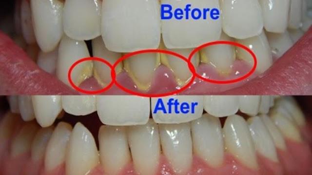 Wooow...Tanpa Harus ke Dokter, Inilah 4 Cara Mudah Merontokkan Karang Gigi Dalam Beberapa Menit !!
