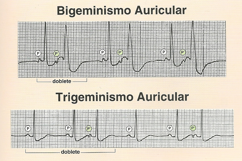 Bigeminismo Ventricular Tratamiento Pdf Download