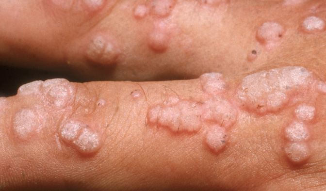 papilloma vírus méhnyakrák pret papillómák