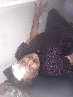 Medicine Seller Looted Firozabad Uttar Pradesh