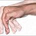 Parkinson Definisi Gejala Penyebab Dan Pengobatan serta Pencegahan Penyakit Parkinson Menurut Ilmu Kedokteran