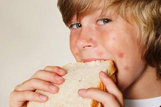 Penyakit Alergi Pada Anak | Alergi Pada Anak | Alergi Anak