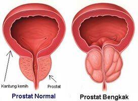 Cara mengatasi pembengkakan prostat