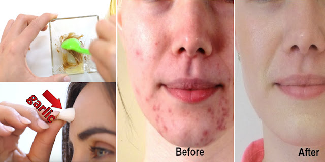 How To Remove Acne And Pimples Within A Few Hours With Home Ingredients