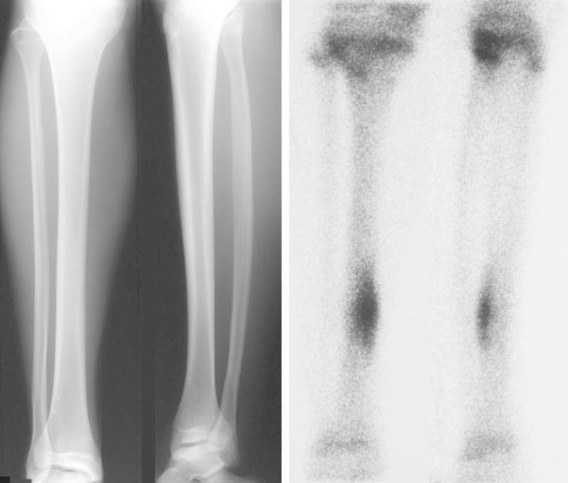 Running Writings Injury Series Tibial Stress Fractures And Stress Reactions The Role Of Bone Structure Impact And Calf Strength