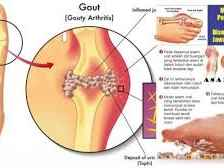How to treat gout with herbal medicines