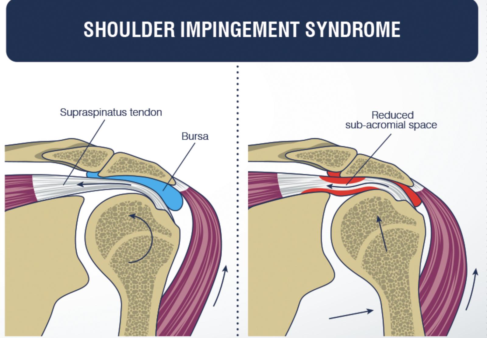 Quando è indicato l intervento per una sindrome da dolore ... dd6839327b06