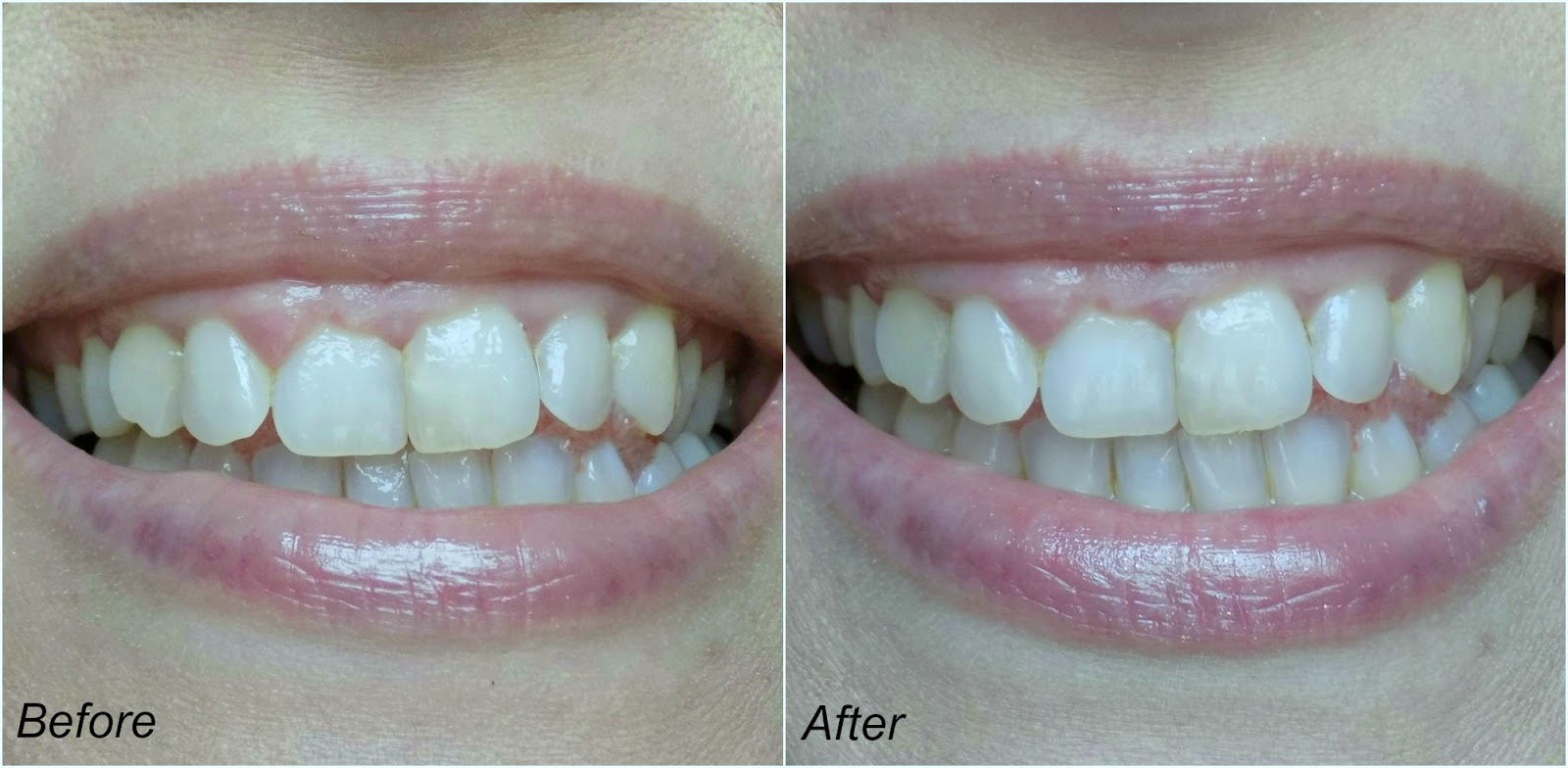 Whitewash Nano Whitening Regimen, before and after photos
