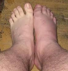 โรคเก๊าท์ที่ข้อเท้า