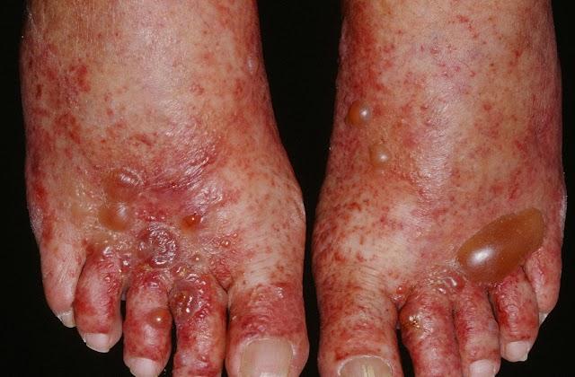 No hay alerta epidemiológica por virus Coxsackie