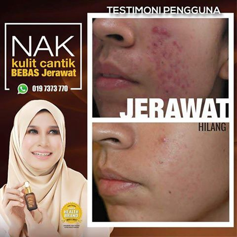 Ephyra Skin Nano Advanced Repair Serum Bantu Pudarkan Parut