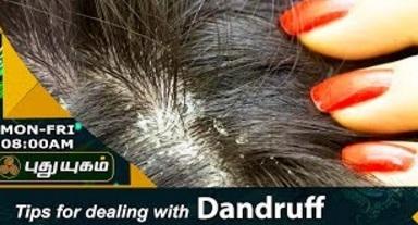How to Get Rid of Dandruff 20-07-2017 Puthuyugam Tv