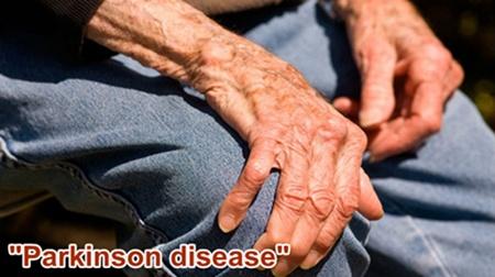 Cara Mengobati Parkinson Secara Alami Tanpa Efek Samping