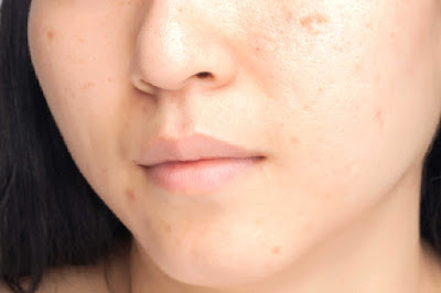 Dark Spots on Your Face Fast