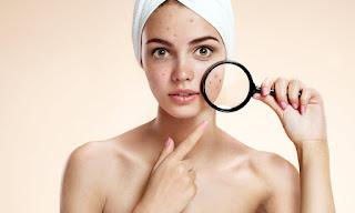 ¿Cómo tratar el acné en adultos?