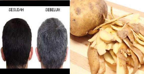 Kulit Kentang Untuk Rambut Beruban