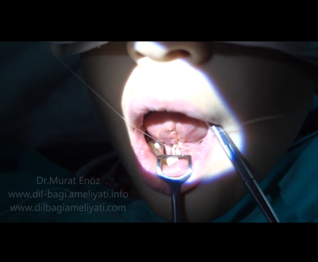 Bloodless tongue tie operation - Bloodless tongue tie release surgery - Bloodless tongue tie surgery - Bloodless tongue tie relase operation - Tongue tie treatment in Istanbul - Lingual frenulum surgery with thermal welding device