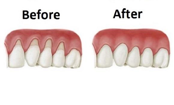 how to make receding gums grow back