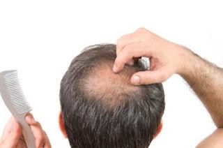 Obat Penumbuh Rambut Botak, Obat Penumbuh Rambut Alami