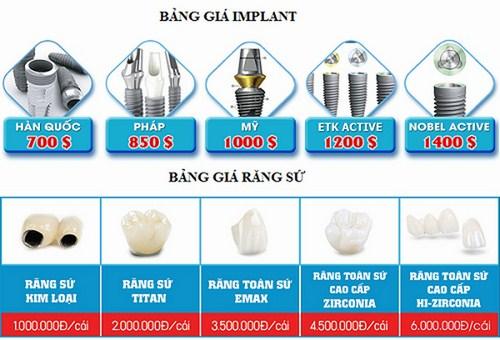 Giá Cấy Ghép Implant Tốt Nhất Hiện Nay -2