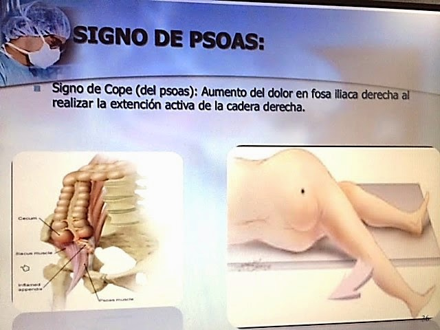 DR. JUAN HERNÁNDEZ ORDUÑA. : Enfermedades del apéndice cecal texto.