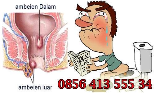 Obat Ambeien Alternative