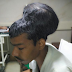 IN INDIA, A SURGEON REMOVES 4-POUND BRAIN TUMOR FROM MAN'S HEAD