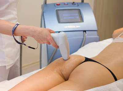 Cellulite laser treatment 2016