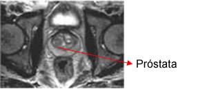 resonancia para próstata