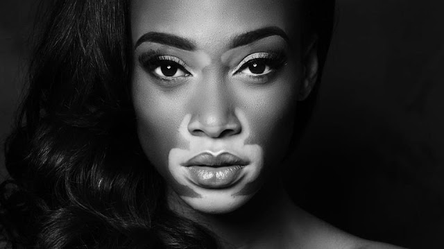 Winnie Harlow who is, wikipedia, what happened to, biografia, skin, condition, skin story, model, vitiligo, skin condition, america's next top model, makeup, windsor young, photos, skin disease, desigual, top model, attitude, antm, christina harlow, story, bikini, images, snapchat, quotes, instagram
