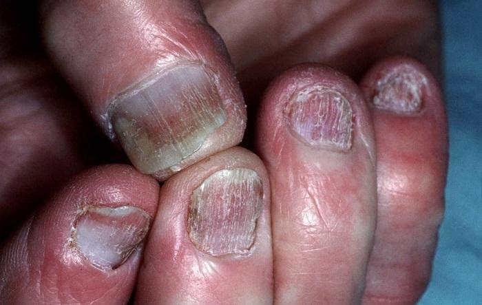 La tintura del propóleos ayuda al hongo de las uñas