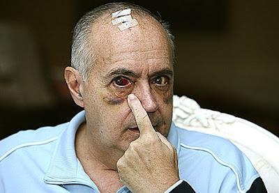 José Luis Moreno, ojo morado, agresión, a la virulé
