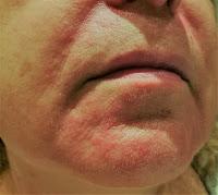 brote de dermatitis seborreica