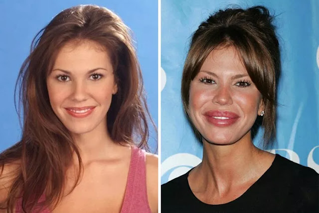Before And After Celebs Plastic Surgery Disasters