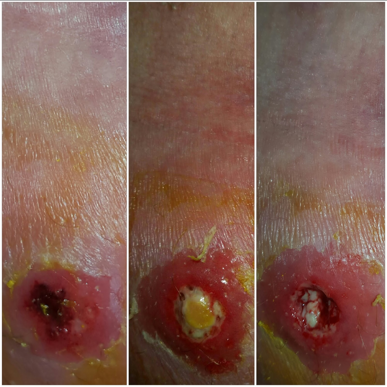MRSA: Treating it naturally: My journey with MRSA / Cellulitis