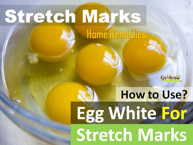 Egg White for stretch marks remval, how to lighten stretch marks fast with Egg White, how to get rid of stretch marks, home remedies for stretch marks, remove stretch marks, stretch marks treatment,