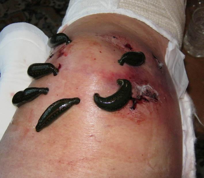 лечение артрита пиявками отзывы
