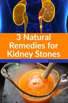 3 Natural Remedies for Kidney Stones