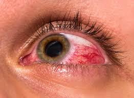 Pengertian, Patofisiologi, Etiologi, dan Pengobatan Kelainan Ablasio Retina Pada Mata,