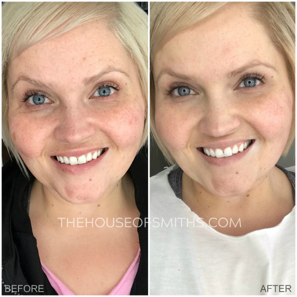 Self-Care, Microneedling + Before & Afters | House of