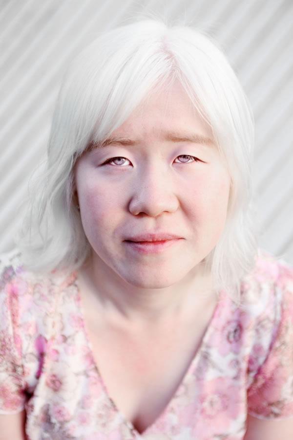 Natalie's Inspiration: Albino is beautiful