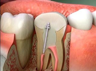 Trám răng lấy tủy khi nào là thích hợp nhất?