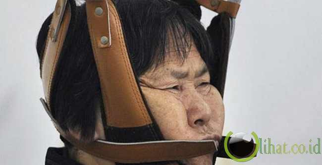 Pengobatan Spondylosis – Hefei, China