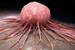 Kisah Terbentuknya Sel Kanker