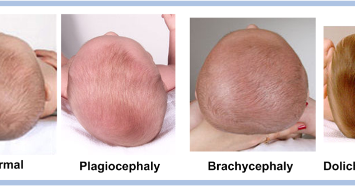Specially Designed Baby Pillow For Plagiocephaly And