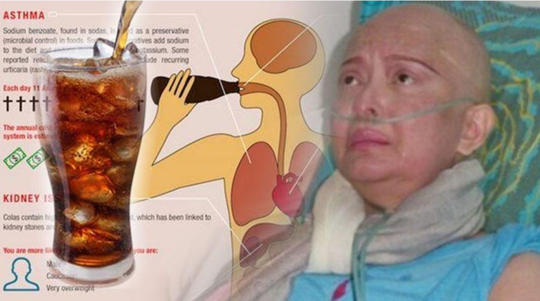 Ilmuwan Amerika Ternyata Sudah Mengingatkan, Minuman Kesukaan Yana Zein itu Pembawa Kanker Payudara